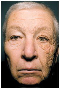 左側だけ老化が進んだ老齢の男性の顔